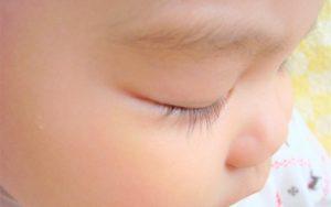 赤ちゃんの目やに